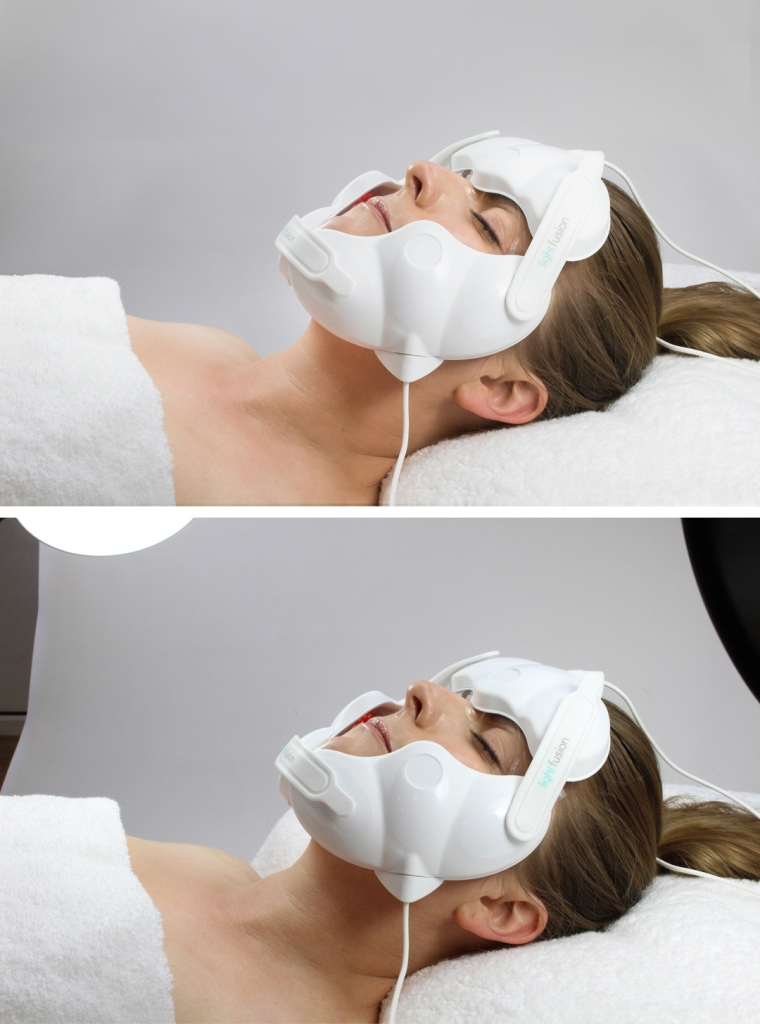 LFmask-before-after